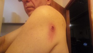boil-on-Left shoulder